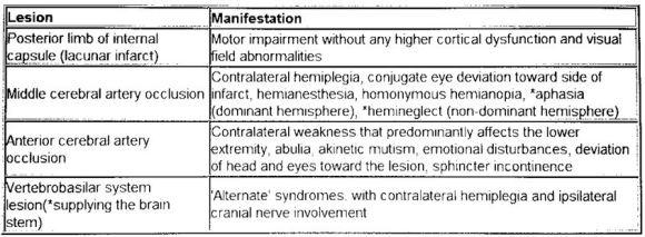 lacunar stroke 2