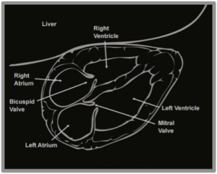 Figure 11 - Cardiac Anatomy
