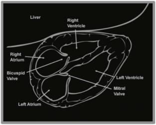 Figure 11 - Cardiac Anatomy