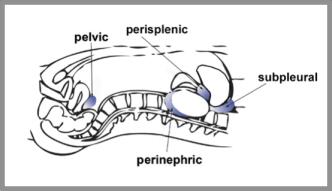 Figure 13 - Left abdomen ultrasound anatomy (Blue shading - areas of fluid collection)