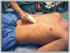 Figure 2 - Subxyphoid Probe Position (From sonoguide.com)