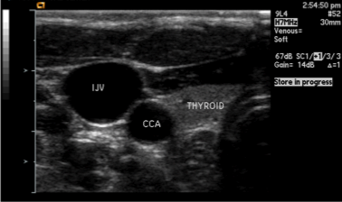 Ultrasound visualization of neck vasculature