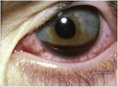 "Hyphema Image courtesy: ""Blunt Injury: Hyphema."" The Eyes Have It: Ophthalmic Trauma. American Academy of Ophthalmology, n.d. Web."