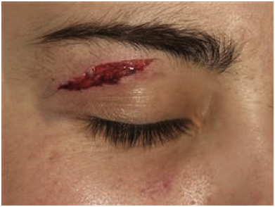 "Upper eyelid laceration Image courtesy: Setnik, Gary S. ""Nerve Blocks of the Face."" Ed. Todd W. Thomsen. Procedures Consult. Elsevier, n.d. Web."