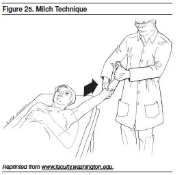 Figure 25. Milch Technique